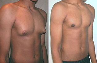 Como Eliminar los Senos Masculinos Sin Cirugia